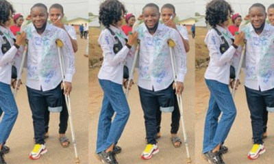 Man who lost one leg during End SARS Protest
