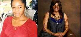 Kechi Okwuchi: Sosoliso crash survivor, pictured with english singer, Mel'B