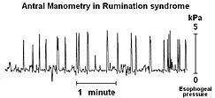 Rumination syndrome