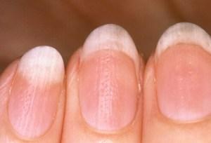 growing-long-healthy-nails