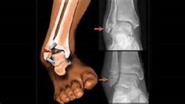 know-bone-fracture