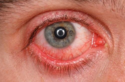 symptoms-eye-pain-know