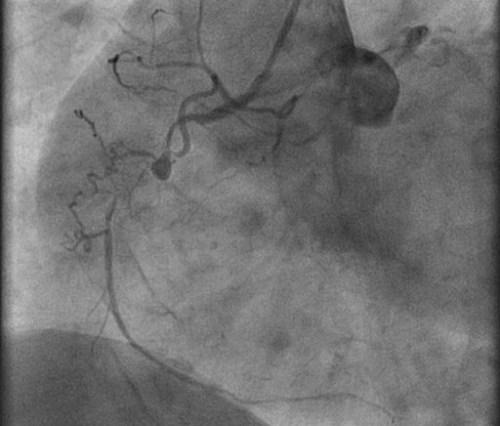 treatments-coronary-artery-blockage-