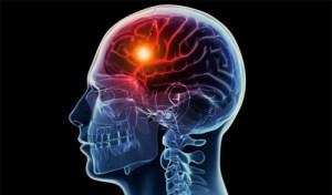 major-risk-factors-stroke