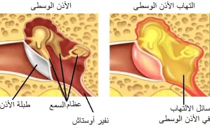 ما هي سبل علاج التهاب الأذن عند الأطفال؟