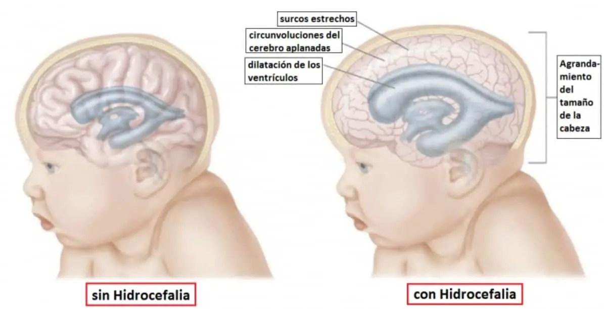 مرض انعدام الدماغ للأطفال