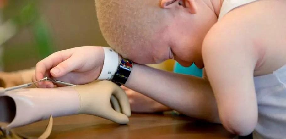 تفقم الأطراف عند الأطفال ما هي أسبابه وأعراضه وطرق العلاج؟