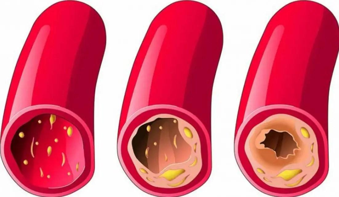 اعراض ضيق الشرايين القلبية