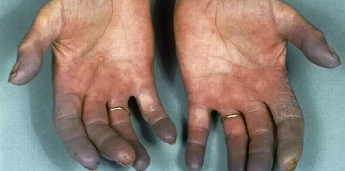 مرض بورغر