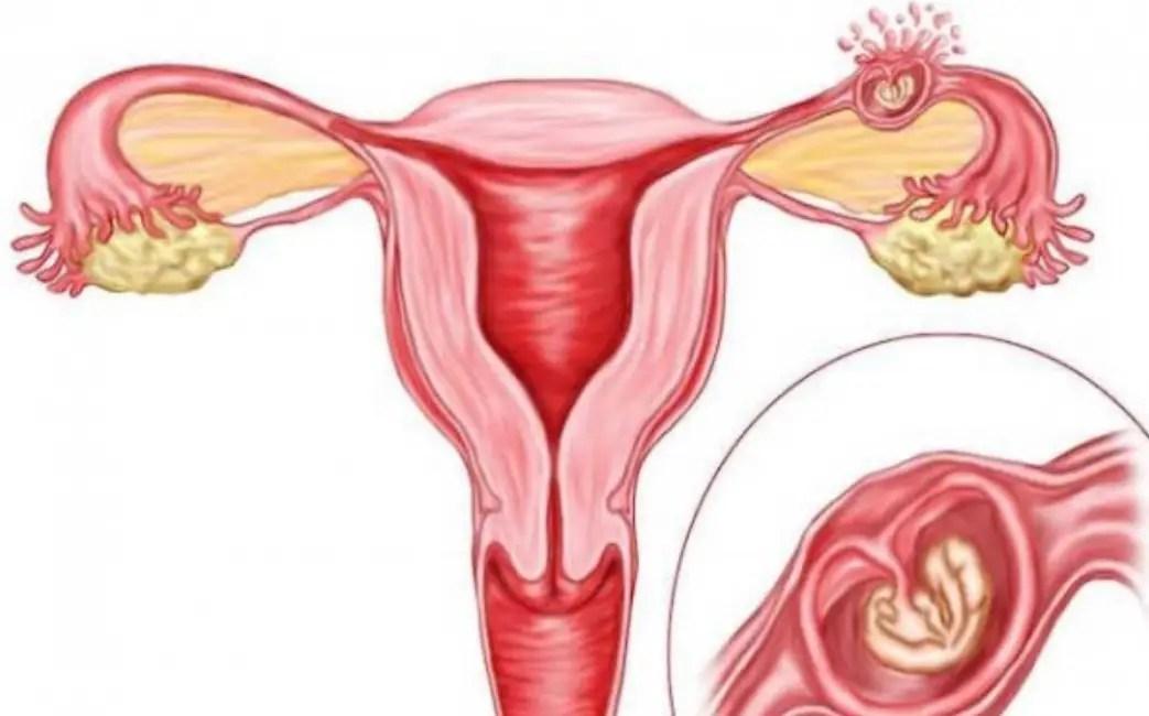 مع شيوع حالات حدوث الحمل خارج الرحم أصبح من الضروري الوعي الكامل بمسبباته وأعراضه وبماذا نعني بالحمل خارج الرحم وطُرق الوقاية.