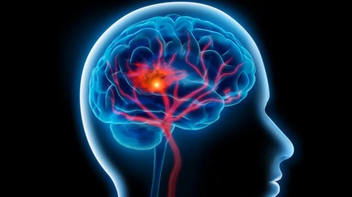 زيادة الكهرباء بالمخ لدى الرضع ... الأسباب والأعراض وطرق العلاج