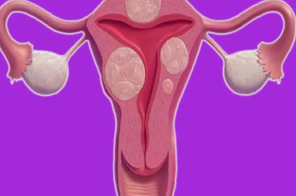 أسباب وعلاج تليف الرحم