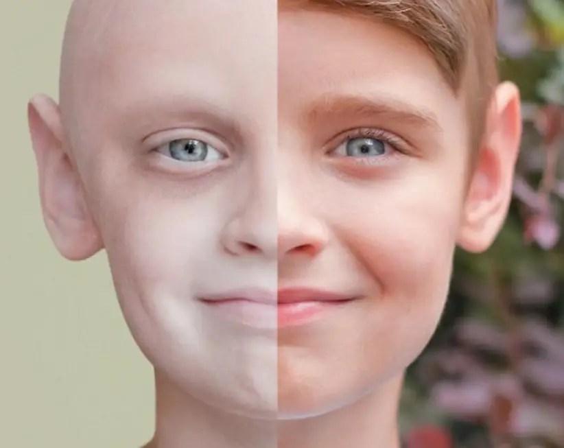 اللوكيميا عند الاطفال هل بإمكاننا التغلب عليه؟