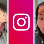 Instagram bans 'cosmetic surgery' filters
