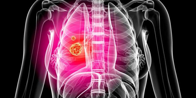 Get Details of Lung Cancer with Lung Cancer Causes