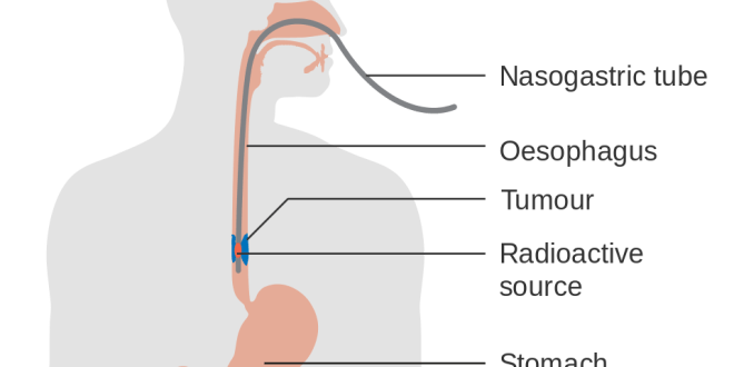 Get Details of Esophageal Cancer & Esophageal Cancer Causes