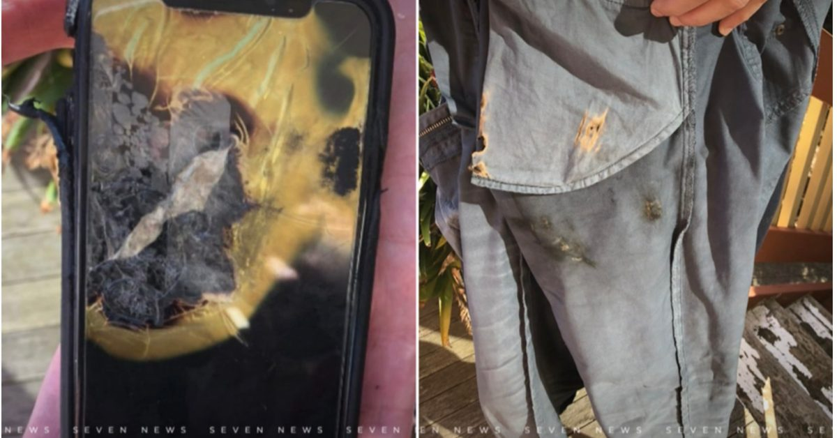 photo of Australian man takes legal action against Apple after his iPhone X 'exploded' in his pocket image