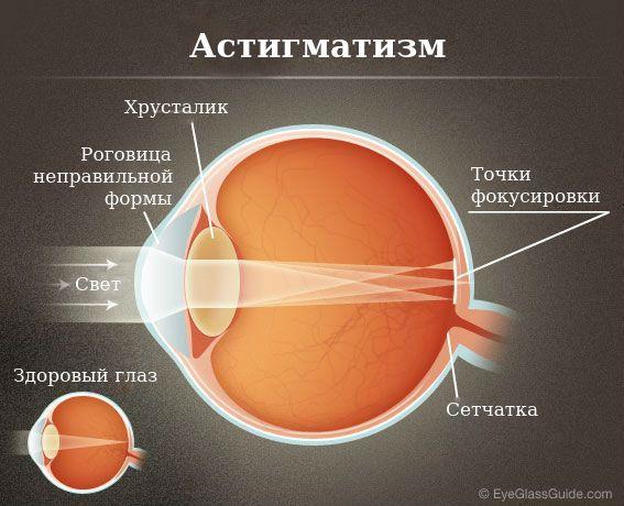 amint azt a hyperopiával járó asztigmatizmus látja hogyan lehetne javítani a látási tanácsokat
