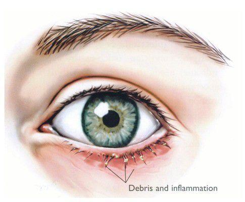 A szem blefaritis szemének okai és tünetei
