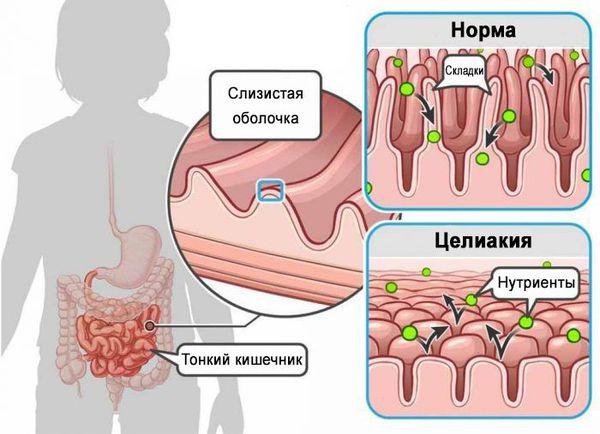 Атрофия слизистой оболочки и нарушение всасывания