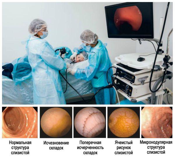 ЭФГДС: состояние слизистой оболочки тонкого кишечника при целиакии