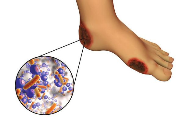 Skin color when developing a diabetic foot