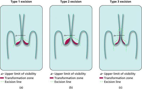 Cervicen dysplasia