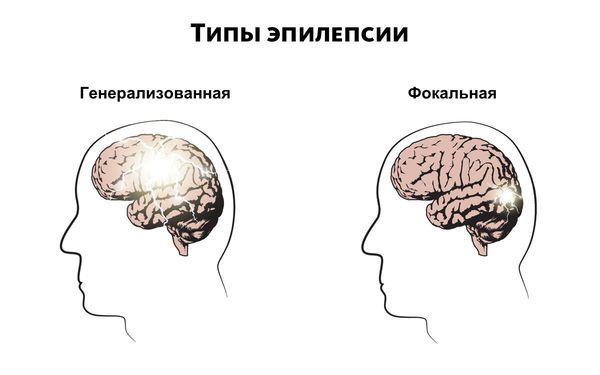 Types d'épilepsie