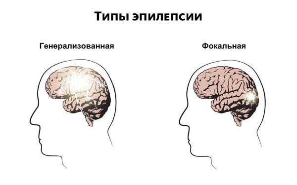 Epilepsy এর ধরন