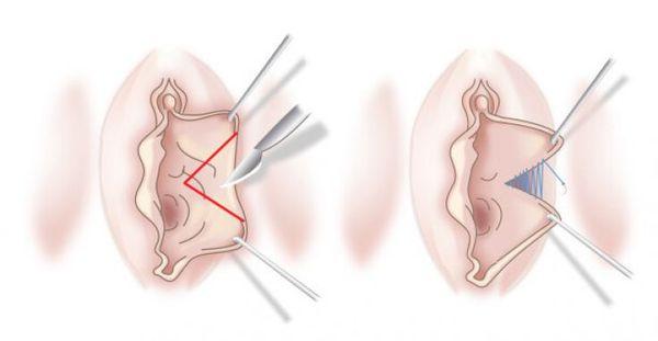 Секторальная редукционная лабиопластика