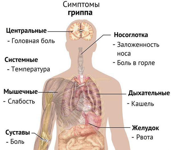 Symptomen van influenza