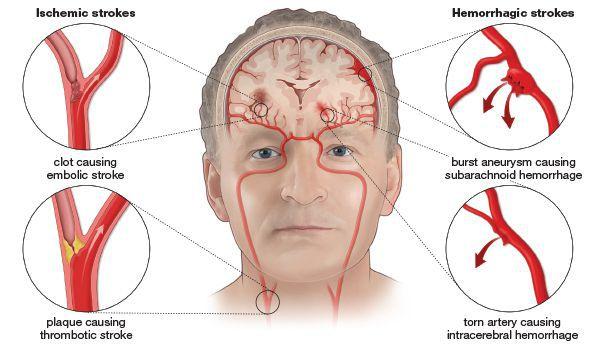 Aterosclerose cerebral.