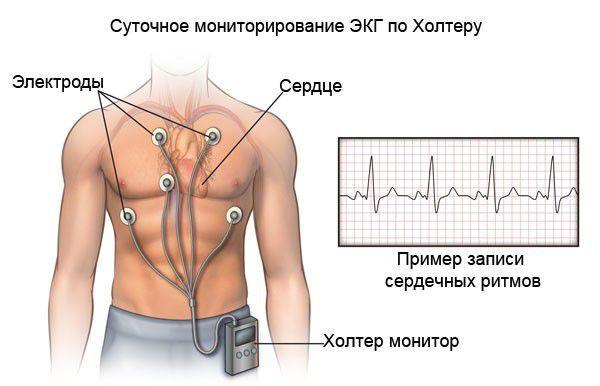 Холтеровское ЭКГ-мониторирование