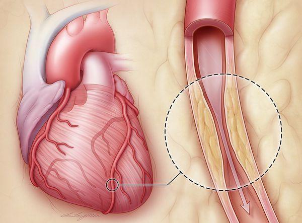 Сужения просвета артерий сердца