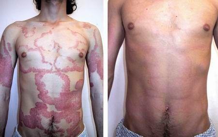 Il sintomo principale di orticaria: la scomparsa dell'eruzione cutanea dopo 1-2 giorni