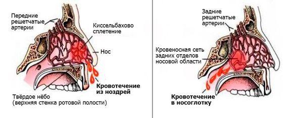 Näsa blöder
