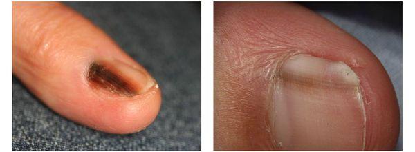 Меланома на ногтевой пластине