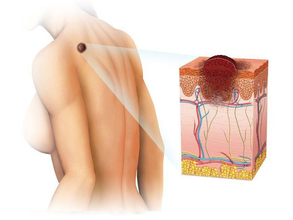 Злокачественная опухоль в виде меланомы