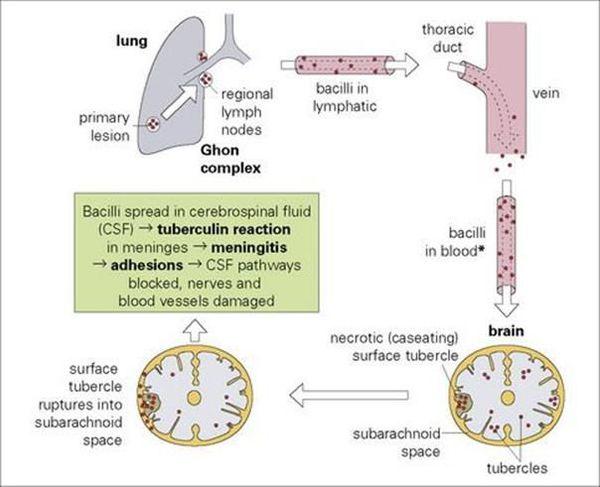 Туберкулез менингит