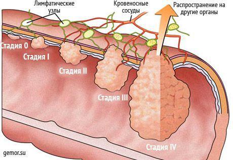 A rák szakaszai
