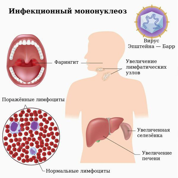 Nakakahawang mononucleosis