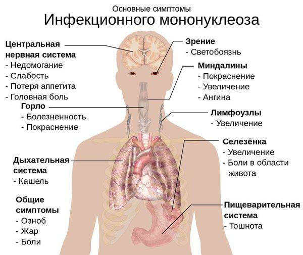 อาการของ mononucleosis ติดเชื้อ