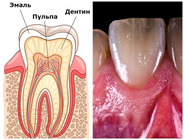 Puntpigmentatie van meerdere tanden en een volledige verandering in de schaduw van één tand