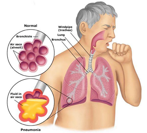 Alveoli är normal och vid lunginflammation