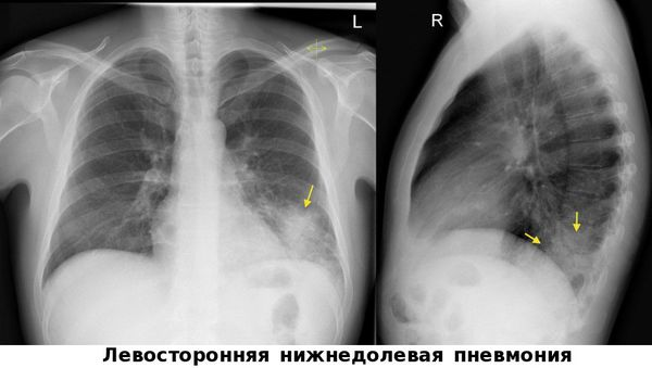 Pneumonia kelas bawah sisi kiri