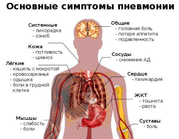 De viktigaste symptomen på lunginflammation