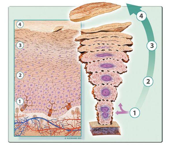 Псориатикалық артрит түрлері