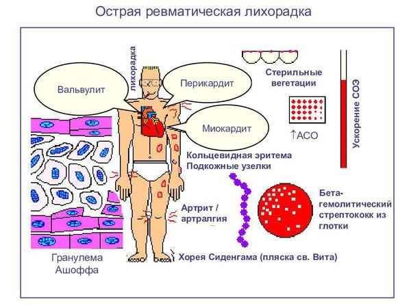 A baktériumok kolónia körül szinte átlátszó vér agar