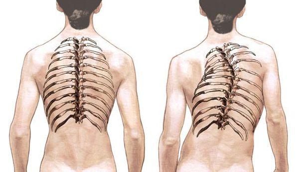Изменение грудной клетки при сколиозе