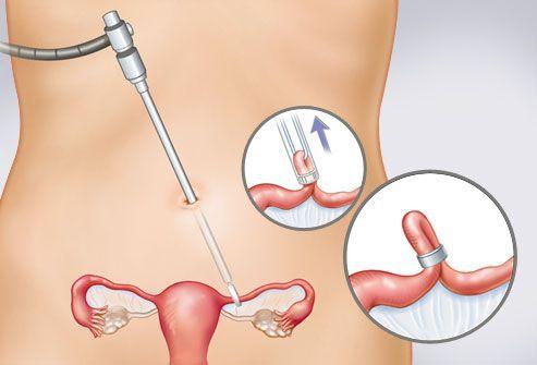 Лапароскопическое лечение трубной внематочной беременности